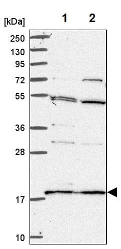 Western blot - Anti-RPS18 antibody (ab224579)