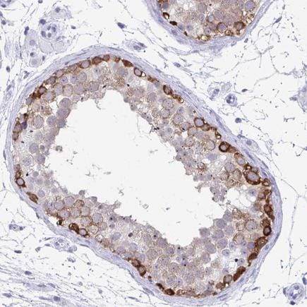Immunohistochemistry (Formalin/PFA-fixed paraffin-embedded sections) - Anti-C3orf22 antibody (ab224585)