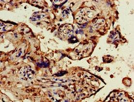 Immunohistochemistry (Formalin/PFA-fixed paraffin-embedded sections) - Anti-OBSL1 antibody (ab224588)