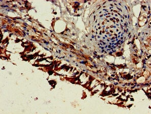 Immunohistochemistry (Formalin/PFA-fixed paraffin-embedded sections) - Anti-ESM1 antibody (ab224591)