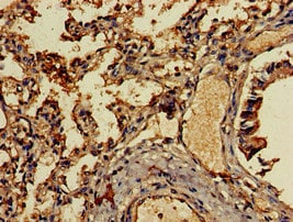 Immunohistochemistry (Formalin/PFA-fixed paraffin-embedded sections) - Anti-MCP4 antibody (ab224593)