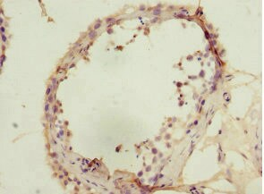 Immunohistochemistry (Formalin/PFA-fixed paraffin-embedded sections) - Anti-SIVA antibody (ab224595)
