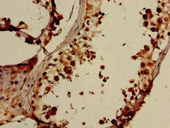 Immunohistochemistry (Formalin/PFA-fixed paraffin-embedded sections) - Anti-ELOVL4 antibody (ab224608)