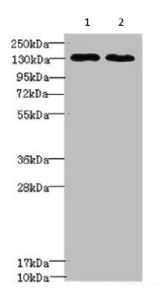 Western blot - Anti-Tripeptidyl peptidase II/TPPII antibody (ab224609)