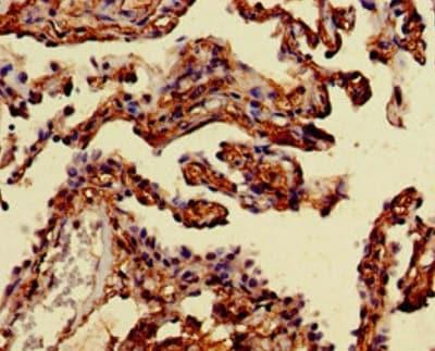 Immunohistochemistry (Formalin/PFA-fixed paraffin-embedded sections) - Anti-Mannosidase II/MAN2A1 antibody (ab224611)