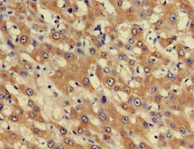 Immunohistochemistry (Formalin/PFA-fixed paraffin-embedded sections) - Anti-BHC80 / PHF21A antibody (ab224612)