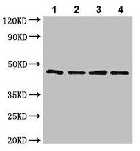 Western blot - Anti-NOB1 antibody (ab224619)
