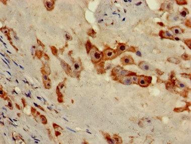 Immunohistochemistry (Formalin/PFA-fixed paraffin-embedded sections) - Anti-NOB1 antibody (ab224619)