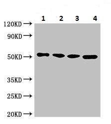 Western blot - Anti-MCT2 antibody (ab224627)