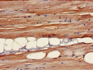 Immunohistochemistry (Formalin/PFA-fixed paraffin-embedded sections) - Anti-B3GALT4 antibody (ab224630)