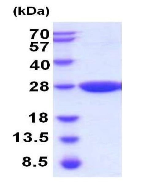 SDS-PAGE - Recombinant Mouse Gstp2 protein (His tag) (ab224636)