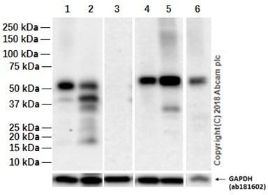 Western blot - Anti-SOX17 antibody [EPR20684] (ab224637)