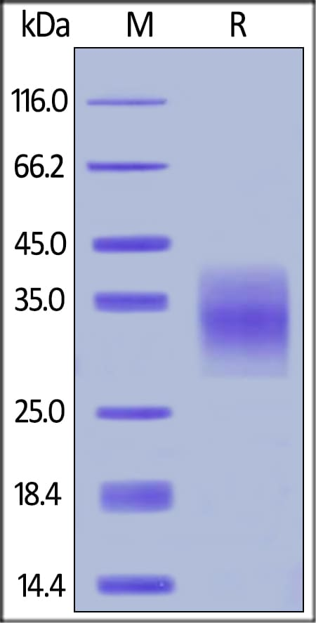 SDS-PAGE - Recombinant human TNF Receptor I protein (Active) (ab224647)