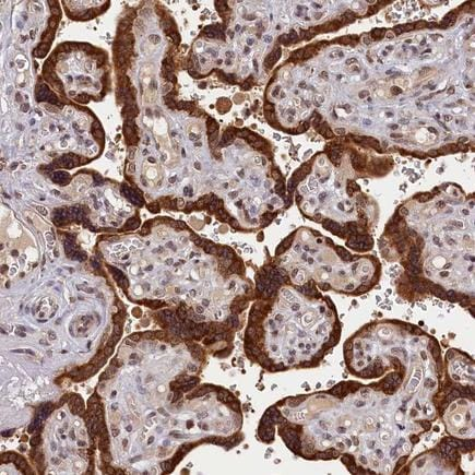 Immunohistochemistry (Formalin/PFA-fixed paraffin-embedded sections) - Anti-KCNK6 antibody (ab224656)