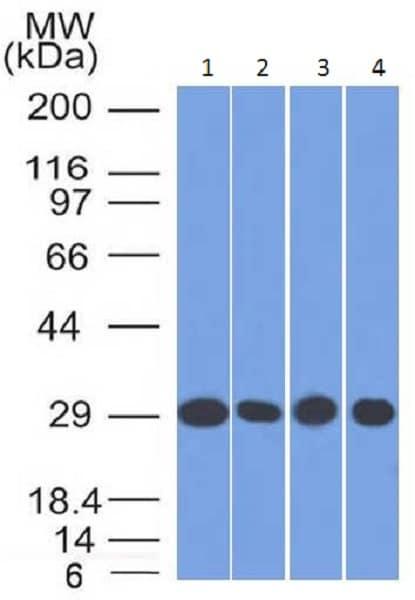 Western blot - Anti-Prohibitin antibody [PHB/1882] (ab224657)