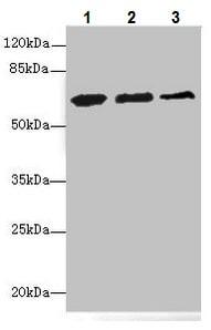 Western blot - Anti-ETFDH antibody - C-terminal (ab224663)