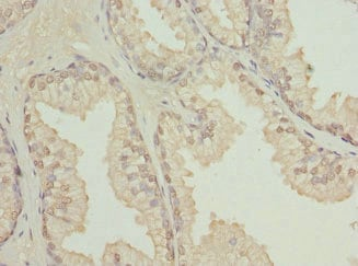Immunohistochemistry (Formalin/PFA-fixed paraffin-embedded sections) - Anti-TBCE antibody (ab224664)