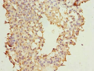 Immunohistochemistry (Formalin/PFA-fixed paraffin-embedded sections) - Anti-NUDT2 antibody (ab224665)