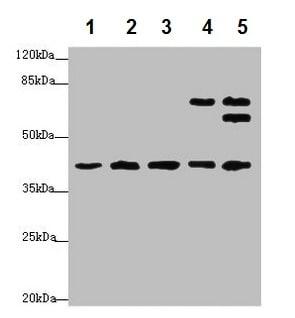 Western blot - Anti-IKIP antibody (ab224666)