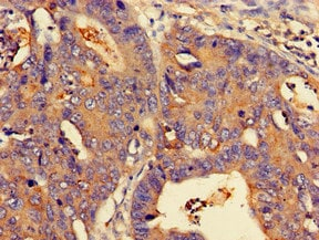 Immunohistochemistry (Formalin/PFA-fixed paraffin-embedded sections) - Anti-N myc interactor/NMI antibody (ab224675)