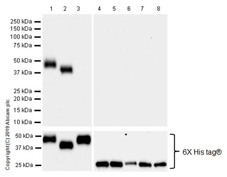 Western blot - Anti-KIR2DL1 + KIR2DL2 antibody [EPR22492-2] (ab224696)