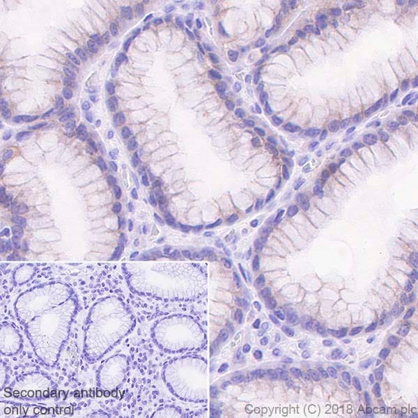 Immunohistochemistry (Formalin/PFA-fixed paraffin-embedded sections) - Anti-MICA + MICB antibody [EPR22031] (ab224702)