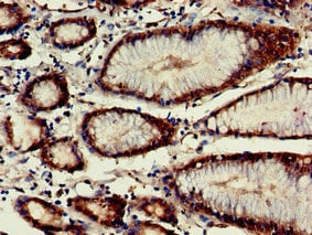 Immunohistochemistry (Formalin/PFA-fixed paraffin-embedded sections) - Anti-VASH2 antibody (ab224723)