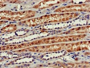 Immunohistochemistry (Formalin/PFA-fixed paraffin-embedded sections) - Anti-Phospho1 antibody (ab224724)