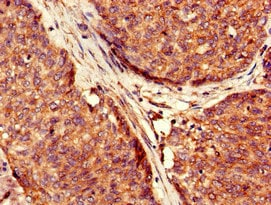 Immunohistochemistry (Formalin/PFA-fixed paraffin-embedded sections) - Anti-USP6 antibody (ab224725)