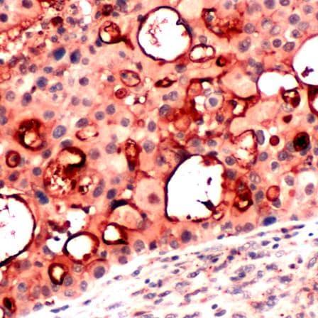 Immunohistochemistry (Formalin/PFA-fixed paraffin-embedded sections) - Anti-Mesothelin antibody (ab224730)
