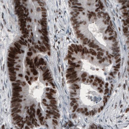 Immunohistochemistry (Formalin/PFA-fixed paraffin-embedded sections) - Anti-SNAIL + SLUG antibody [CL3700] - N-terminal (ab224731)