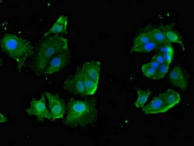 Immunocytochemistry/ Immunofluorescence - Anti-CYP20A1 antibody (ab224735)