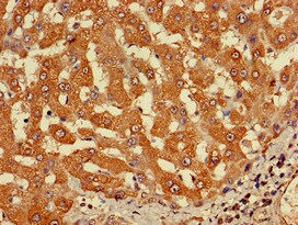 Immunohistochemistry (Formalin/PFA-fixed paraffin-embedded sections) - Anti-CYP20A1 antibody (ab224735)