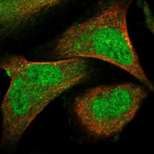 Immunocytochemistry/ Immunofluorescence - Anti-SENP7/SSP2 antibody (ab224752)