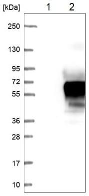 Western blot - Anti-C1orf172 antibody (ab224760)
