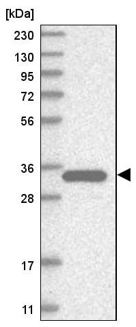 Western blot - Anti-Estrogen Sulfotransferase antibody (ab224761)