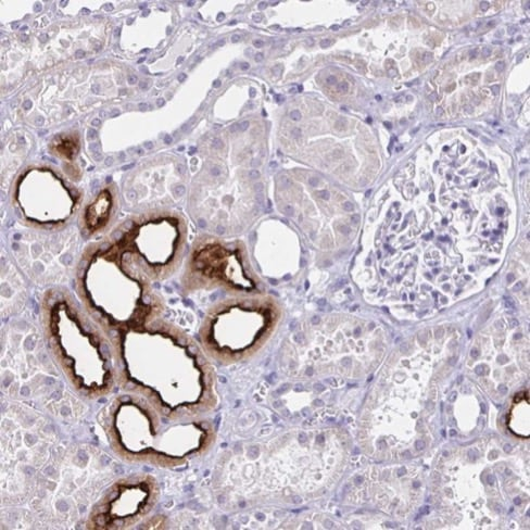 Immunohistochemistry (Formalin/PFA-fixed paraffin-embedded sections) - Anti-SLC12A3 antibody (ab224762)