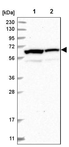 Western blot - Anti-INTS11 antibody (ab224765)