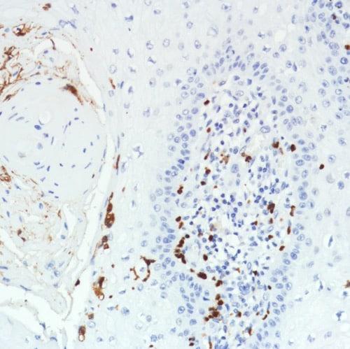 Immunohistochemistry (Formalin/PFA-fixed paraffin-embedded sections) - Anti-CD11b antibody [SP331] - C-terminal (ab224800)