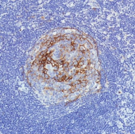 Immunohistochemistry (Formalin/PFA-fixed paraffin-embedded sections) - Anti-CD11b antibody [SP331] - C-terminal (ab224800)