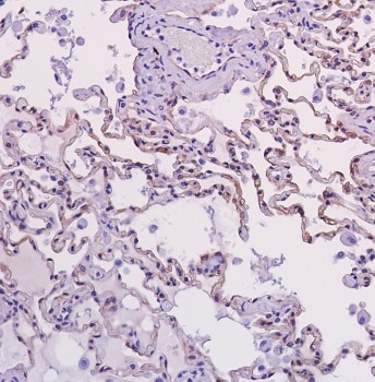 Immunohistochemistry (Formalin/PFA-fixed paraffin-embedded sections) - Anti-beta Catenin antibody [SP328] (ab224803)