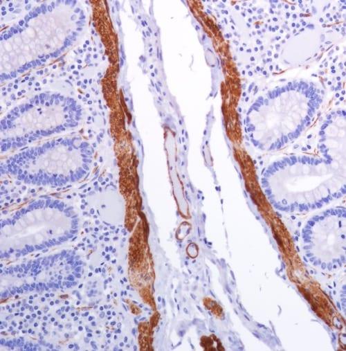 Immunohistochemistry (Formalin/PFA-fixed paraffin-embedded sections) - Anti-smooth muscle Myosin heavy chain 11 antibody [SP314] - N-terminal (ab224804)