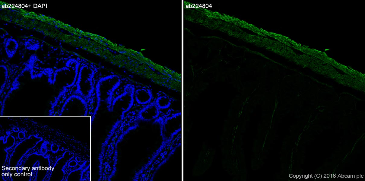 Immunohistochemistry (Frozen sections) - Anti-smooth muscle Myosin heavy chain 11 antibody [SP314] - N-terminal (ab224804)