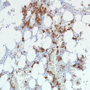 Immunohistochemistry (Formalin/PFA-fixed paraffin-embedded sections) - Anti-CD11b antibody [SP330] - C-terminal (ab224805)