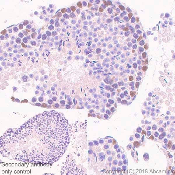 Immunohistochemistry (Formalin/PFA-fixed paraffin-embedded sections) - Anti-Wilms Tumor Protein antibody [SP321] (ab224806)