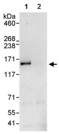 Immunoprecipitation - Anti-EPS15 antibody (ab224811)