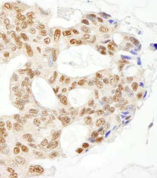 Immunohistochemistry (Formalin/PFA-fixed paraffin-embedded sections) - Anti-XPG antibody (ab224815)