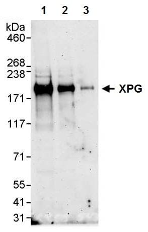 Western blot - Anti-XPG antibody (ab224815)