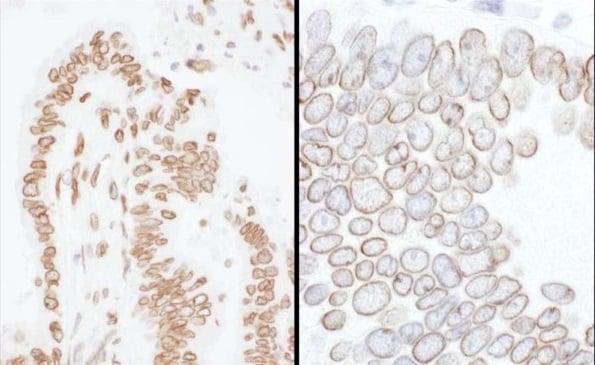 Immunohistochemistry (Formalin/PFA-fixed paraffin-embedded sections) - Anti-Lamin A + Lamin C antibody (ab224816)