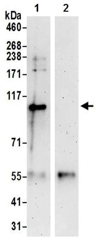Immunoprecipitation - Anti-DNA Ligase III/LIG3 antibody (ab224820)